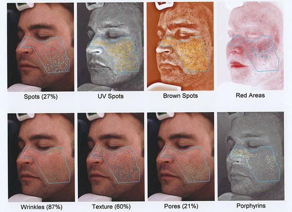 visia-analisis-facial-xxx-nude-amateur-sleeping-wives